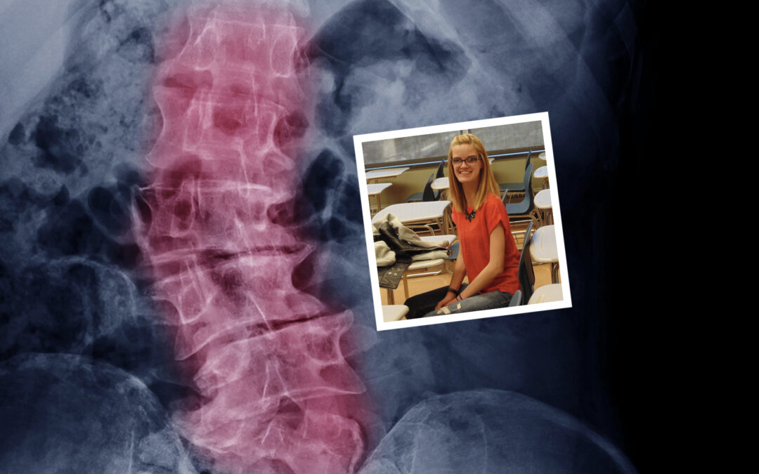 Scoliosis: 7 things parents need to know
